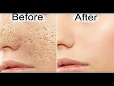 How to CLOSE OPEN PORES Permanently - Get Rid of LARGE PORES in 3 Days with Simple Ingredients ✔✔✔ - YouTube