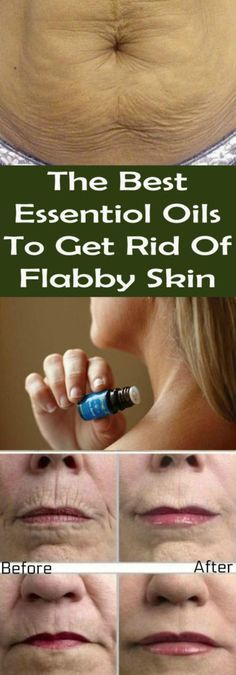 The Best Essentiol Oils To Get Rid Of Flabby Skin #health #skin #flabby #tight