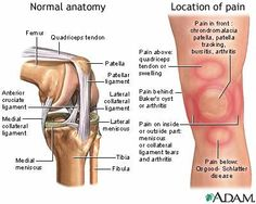 The Illustrated Guide to What's Causing Your Knee Pain: Step 5 of 5 - Specific Location of Knee Pain