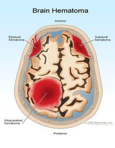 Epidural hematoma - hemorrhage between skill & dura  Subdural hematoma - hemorrhage between dura & arachnoid