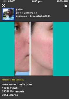 hormones and rosacea