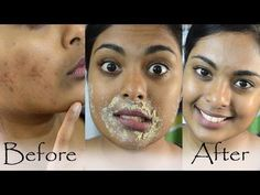 How To Get Rid Of Hyperpigmentation, Dark Upper Lip, Dark Spots & Acne Scars Naturally At Home - YouTube #HowtoRemoveAcneScars