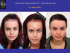 Dorin performed an ultra-refined follicular unit hair transplant at his New York City surgical suite 8 months ago. The treatment was focused on restoring a lower contour the the hairline and rebuilding the temporal region - 1433 grafts transplanted. Forehead Reduction, Hair Transplant Women, Hair Restoration, Hairline, Hair Loss, Contour, Hair Color, Community, Female