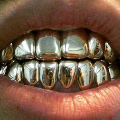 Tooth Gem, Grills Teeth, Gold Grill, Hip Hop Bling, Dental, Boujee Aesthetic, Gold Teeth, Touch Of Gold, Eye Makeup