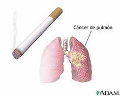 Las mujeres que fuman han tenido más riesgo de morir por cáncer de pulmón y por enfermedad pulmonar obstructiva crónica (EPOC) en las últimas décadas respecto a las mujeres fumadoras de hace 20 ó 40 años, según un artículo publicado en el New England Journal of Medicine (DOI: 10.1056/NEJMsa1211127) sobre los cambios que se han dado en el hábito de fumar.
