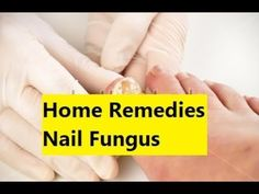 Home Remedies Nail Fungus - Eliminate Your Nail Fungus Forever