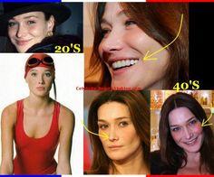 Carla Bruni botox plastic surgery