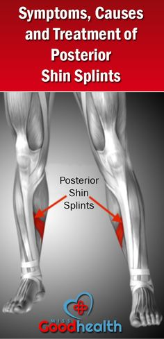 Symptoms, causes and treatment of posterior shin splints :: Miss Goodhealth