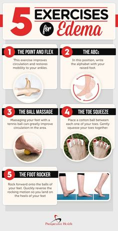 Can exercise help reduce edema? Let's find out. Here are 5 simple exercise to help reduce edema. Home Remedies For Diabetes, Cold Home Remedies, Natural Health Remedies, Natural Cures, Natural Healing, Herbal Remedies, Natural Treatments, Natural Skin, Natural Life