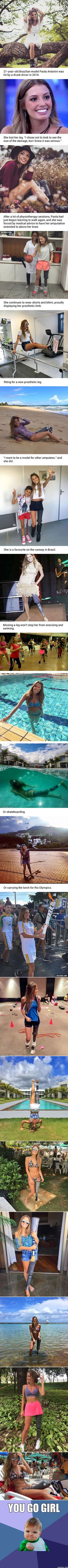 Amputee Model Proudly Displays Prosthetic Limb In Bikini Snaps - 9GAG
