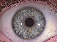 Clinical Iridoloy is a way to detect person's health by diagnosing his iris. This is the reason some says it also known as irisology and sclerology. By detecting the condition of eyes, it can give accurate results about person's health.