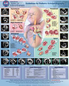 Pediatric Echocardiography Pdf