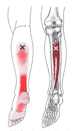 Tibialis Posterior trigger point diagram, pain patterns and related medical symptoms. The myofascial pain pattern has pain locations that are displayed in red and associated trigger points shown as Xs. Medical Symptoms, Referred Pain, Dry Needling, Ankle Pain, Trigger Point Therapy, Massage Benefits, Acupuncture Benefits, Muscle Anatomy, Qi Gong
