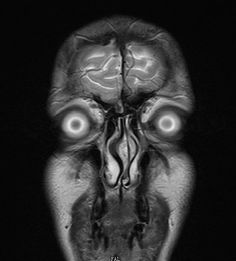 Actual, unretouched MRI scan of a human head.