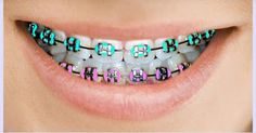 In order to have perfect and confident smile along with the beautiful appearance, most of the people would often like to choose the best braces colors for repairing their dental problems. Green Braces, Fake Braces, Dental Braces, Teeth Braces, Braces Smile, Kids Braces, Dental Care, Cute Braces Colors, Braces Bands