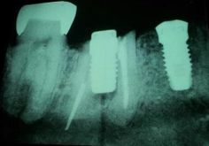 Dentaltown - Can you figure out what went wrong with this dental implant? http://www.dentaltown.com/MessageBoard/thread.aspx?s=2&f=123&t=225229&r=0