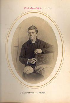 WAGNER, CHRISTAIN    AMPUTATION OF THIGH.    CPL, Company G, 9th New York  CAVALRY    Battle of PETERSBURGH, VA  31 MAR 1865    Dr. BONTECOU, R.B.  HAREWOOD HOSPITAL