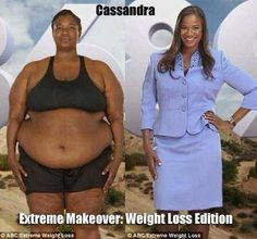 More info and - Weightloss Meme - - Extreme Makeover: Weight Loss Edition Cassandra lost 175 pounds. More info and video: www. Weight Loss Plans, Weight Loss Program, Best Weight Loss, Weight Loss Tips, Before After Weight Loss, Before And After Weightloss, Weight Loss Inspiration, Fitness Inspiration, Body Inspiration