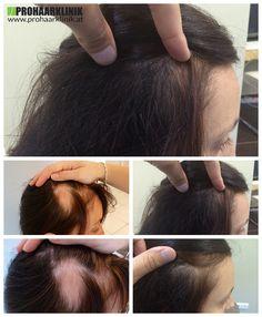 http://www.prohaarklinik.at/haartransplantation-vorher-nachher-bilder/  Weibliche Haarausfall & Die Lösung - PROHAARKLINIK  Reka hatte einen starken Haarausfall vor Ort, auf der rechten Seite des Kopfes. Ihr Spenderzone war eine riesige ein, so dass die Extraktion Teil war kein großes Problem, aber die Implantation war. Die Haut war nicht gut in der Stelle. Das ist es. Das Ergebnis ihrer Haartransplantation. Sie ist glücklich. Transplantation von PROHAARKLINIK gemacht.