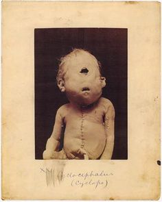 WARNING: DISTURBING. I recently bought an amazing book about one of my favourite places on earth (though I have yet to visit there): The Mütter Museum. It