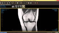 Can a meniscus tear MRI diagnose what's wrong with yiour knee? Not if you're middle aged or older. You need to read this before getting surgery. Knee Mri, Anatomy App, Human Joints, Acl Tear, Sprain, Teaching Biology, Anatomy And Physiology, Radiology, Ultrasound