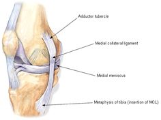 Oblique view of medial knee (right knee). MCL: medial collateral ligament