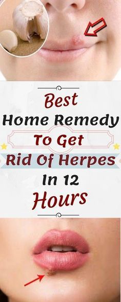 Best Herpes remedy get rid of herpes quick Health Tips For Women, Health Advice, Health And Beauty, Health And Wellness, Health Care, Health Fitness, Women Health, Health Diet, Herpes Remedies