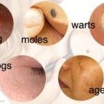 How To Naturally Cure Skin Tags, Moles, Warts, Blackheads, And Age Spots http://wartremovalpro.com/