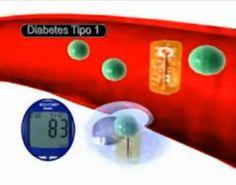Qué es la diabetes tipo 1 y cuál la tipo 2
