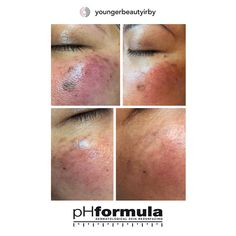 Excellent hyperpigmentation skin resurfacing results from our pHformula skin specialists in the UK. Thank you for sharing Skin Resurfacing, Hair Due, Skin Specialist, Natural Shampoo, Relaxer, Prevent Hair Loss, Dandruff, Damaged Hair, Amino Acids