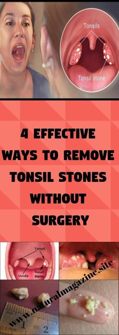 The small white spots you can see on your tonsils at the back of the throat are not called tonsil stones, and are responsible for a variety of oral problems including bad breath. Tonsilitis Remedy, Chronic Sore Throat, Home Remedies, Natural Remedies, How To Get Rid, How To Remove, Tonsil Stones, Slim And Fit, Fit 4