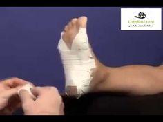 Topuk Dikeni Tedavisi ve Bantlama Topuk Dikenine Doğal Çözüm sağlık videoları - YouTube