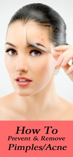 The most important thing to remember is prevention is better than cure. These unwanted pimples can be prevented by following some basic skin care regimes.