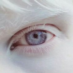 """malformalady: """" The eye of Amal Sofi. Albinism refers to a group of inherited conditions. People with albinism have little or no pigment in their eyes, skin, or hair. Aesthetic Eyes, White Aesthetic, Modelo Albino, Eye Color, Hair Color, Excuse Moi, The Ancient Magus Bride, Fotografia Macro, Evil People"""