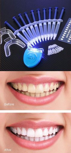 White Light Advanced Teeth Whitening - Now Teeth Whitening has Changed Forever!