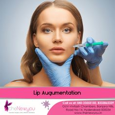Correct the #imperfections in your lips and get perfectly shaped #lips in symmetry with the rest of the face with the #LipAugmentation procedure form theNewyou.