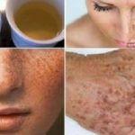 Remédio elimina pano branco e outros problemas de pele