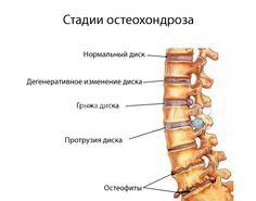 Как избавиться от боли в суставах и вылечить остеохондрох - интервью с главным невропатологом страны!