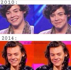 it hurts Harry Styles / One Direction My Heart Hurts, It Hurts, Harry Styles Memes, Some Things Never Change, One Direction Harry Styles, Happy Tears, 1d And 5sos, Harry Edward Styles, Larry Stylinson