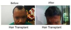 Hair transplant surgery includes both follicular unit transplant & follicular unit extraction. Details: http://www.thenewyouclinic.com/hair-transplant.html