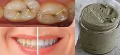 Cavities, gum disease, and other teeth issues can be solved with one natural homemade toothpaste, believe it or not. With the recipe of a homemade tooth paste, explained in the following text your teeth will be white and healthy. There are many toothpastes on the market but none of them is effective like this one....