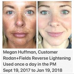 Rodan + Fields gives you the best skin of your life and the confidence that comes with it. Created by Stanford-trained Dermatologists, we understand skin. Our easy-to-use Regimens take the guesswork out of skincare so you can see transformative results. Rodan And Fields Canada, Rodan And Fields Reverse, My Rodan And Fields, Love Your Skin, Good Skin, Skin Care Regimen, Skin Care Tips, Rodan And Fields Regimen, Foundation