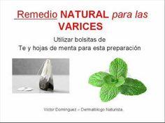 REMEDIO NATURAL para las VARICES - http://soylachica.com/remedio-natural-para-las-varices/