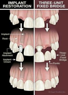 Dentaltown - Would you rather replace a missing tooth with an implant restoration or a three-unit bridge?