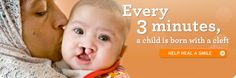 Children's charity for cleft lip & palate surgeries - Operation Smile one of my fav charities I donate too!