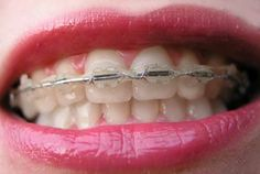Invisible Braces Cost If you are thinking how much invisible braces cost, note that you will have to pay a little more than what you would do to purchase conventional braces...