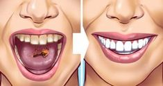 Tartar stains on your teeth can lead to several problematic issues resulting in weak teeth and even teeth loss in early age. Here are 10 helpful and proven natural remedies to get those ugly tartar stains removed from your teeth. Detox Drink Before Bed, Drinks Before Bed, Tartar Removal, Limpieza Natural, Bebidas Detox, Fat Burning Detox Drinks, Natural Teeth Whitening, Teeth Care, Detox Drinks