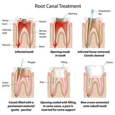 Are you worried about the Root canal treatment in Pune or Dental implants in Pune?Pranjal Bari is best root canal dentist,Implantologist provide the root canal treatment in Pune,Dental implants in Pune. Dental Health, Oral Health, Dental Care, Health Tips, Canal Radicular, Dental Assistant Study, Root Canal Treatment, Tooth Pain, Dental Facts