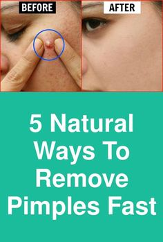 5 natural ways to remove pimples fast All of us want that pimple to just vanish as soon as possible. Alas, there is no magic wand for this either. But trying these 5 tips at home can help you remove pimples fast. Applying lemon juice before sleeping is one of the most simple natural ways to remove pimples overnight. Juice extracted from …