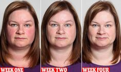 What Giving Up Drinking Alcohol Can Do To Your Face - Skin and Beauty Center - Everyday Health Quit Drinking Alcohol, Alcohol Detox, Benefits Of Quitting Alcohol, Drinking Water, Giving Up Drinking, Giving Up Smoking, Before And After Weightloss, Weight Loss Before, Does Wine Go Bad